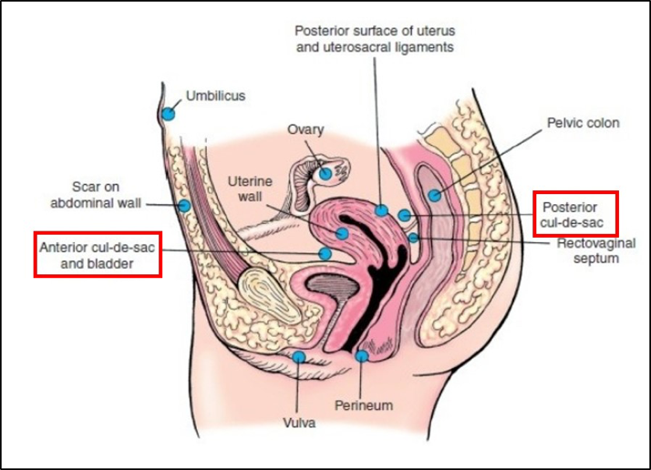 Silent Endometriosis